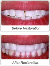 before after image of dental bonding and veenering