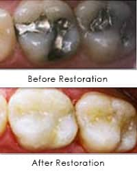 Tooth colored restorations before and after