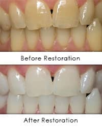 Laser Whitening - before - after