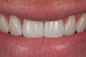 Dental Implant and Crown - After