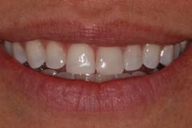 Invisalign Invisible Braces - After