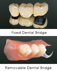 Cemented Dental Bridge