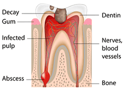 Greenwich dentist - Dental root canal
