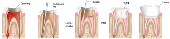 Greenwich Dentist - Root Canal Illustrated Process